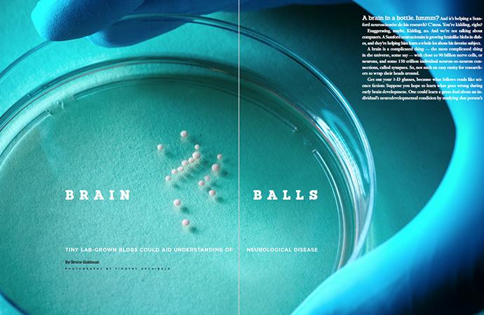 fenley - science - brain balls