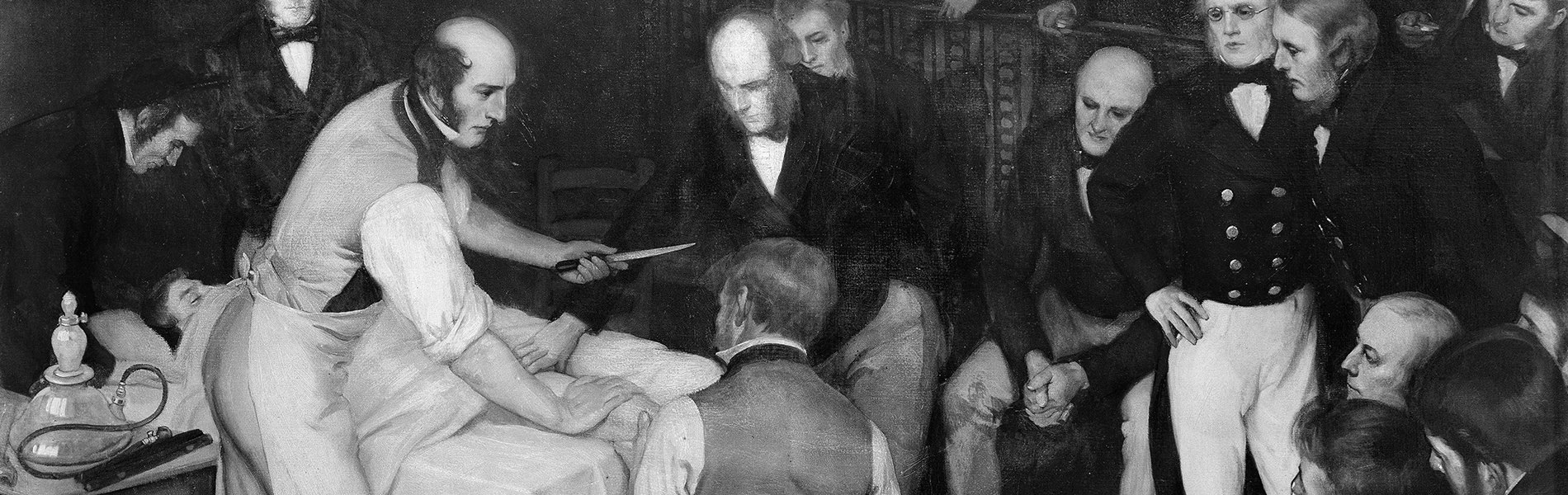 Surgeon Robert Liston operating, depicted by artist Ernest Board of Bristol.