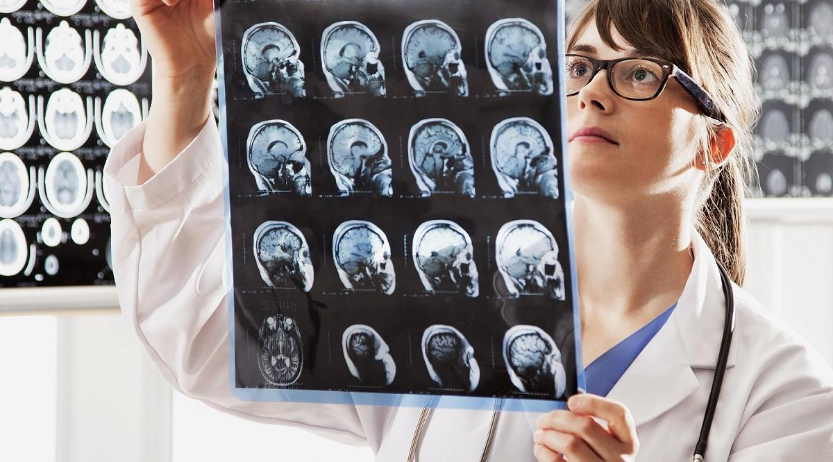 Female doctor holding brain scans.